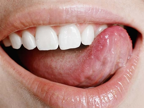 Do your teeth feel smooth and slippery? Then you've probably done a good job getting rid of plaque!
