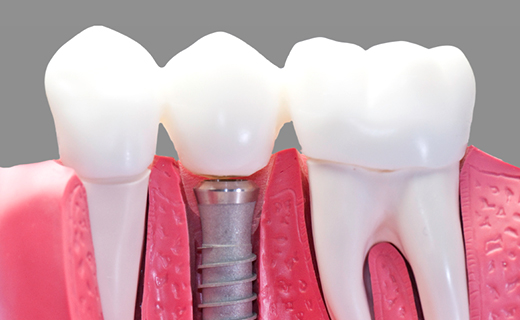 dca-blog_dental-implant-model